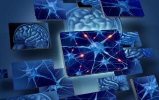 Neurofibromatose, neurologia, sintomas neurológicos, Tratamento doenças neurológicas