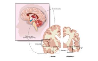 Pesquisas sobre novos tratamentos para doença de Alzheimer