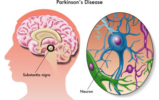 Os sinais prematuros do Parkinson