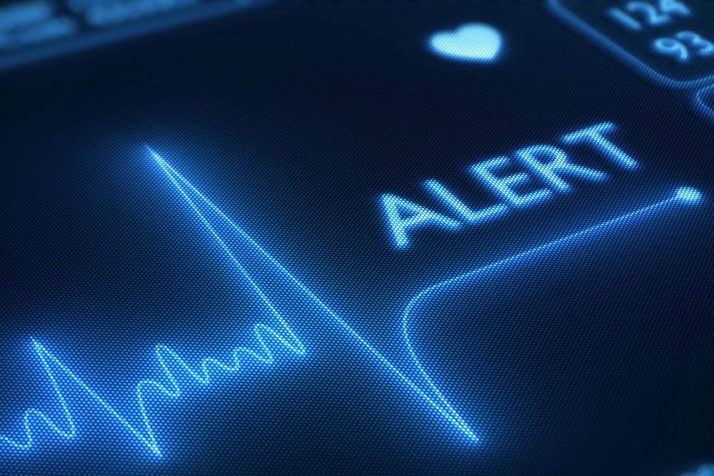 Aneurisma cerebral pode causar desde dor de cabeça até paralisia